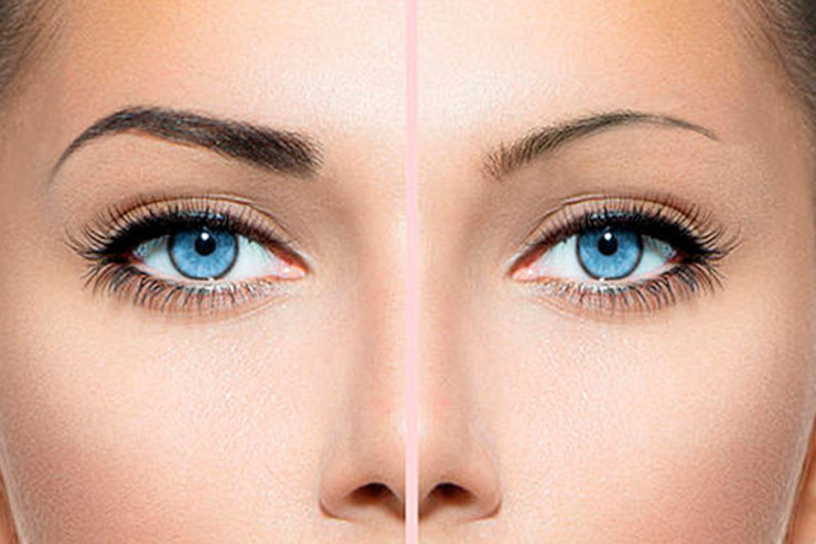 Eyebrow Reconstruction | Eyebrow Transplant | Skin and Sculpt | Chandigarh | Panchkula | Mohali | India | North India